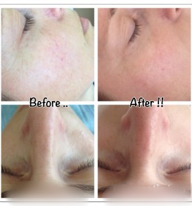 Ideal Radiance 7 day challenge - Before