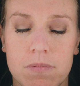 Ideal Radiance Spot Corrector Results