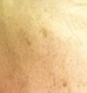 Brighter Skin; Lighter Spots