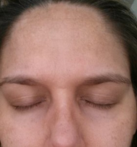 Ideal Radiance Success! - Before