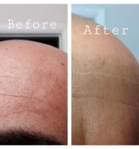 Manchas de Piel solo 25 dias cambió mi piel - After