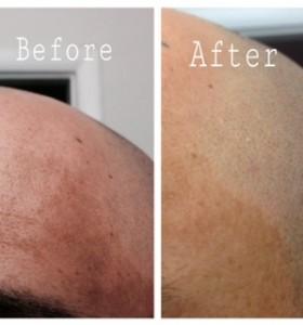 Manchas de Piel solo 25 dias cambió mi piel - Before